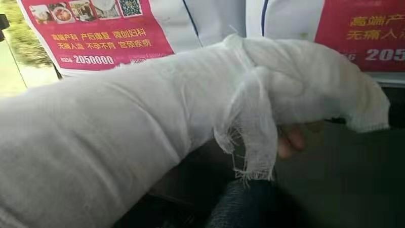 山西三建公司员工受伤无人问津
